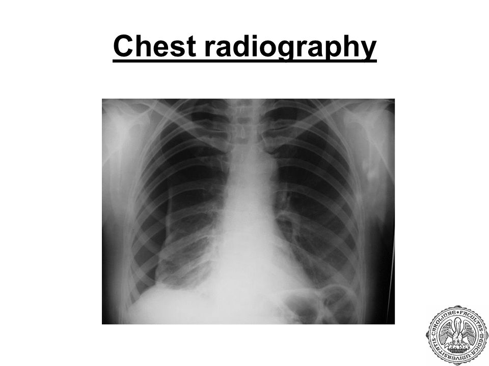 Chest radiography