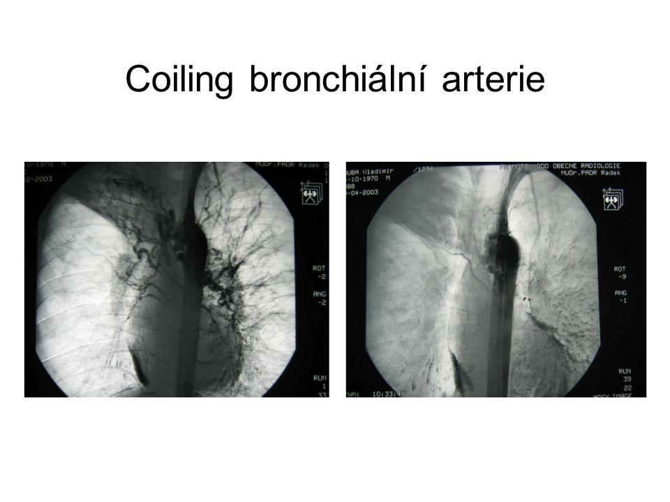 Coiling bronchiální arterie