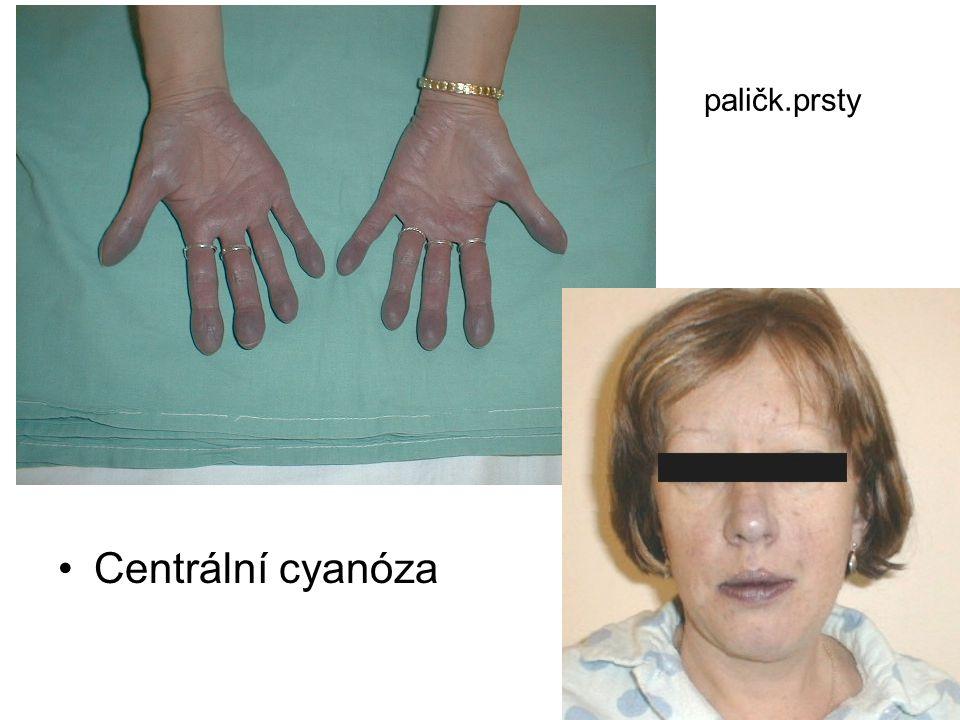 paličk.prsty Centrální cyanóza