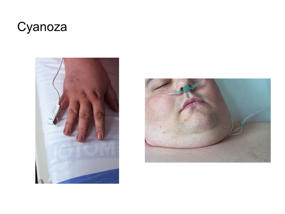 Cyanoza
