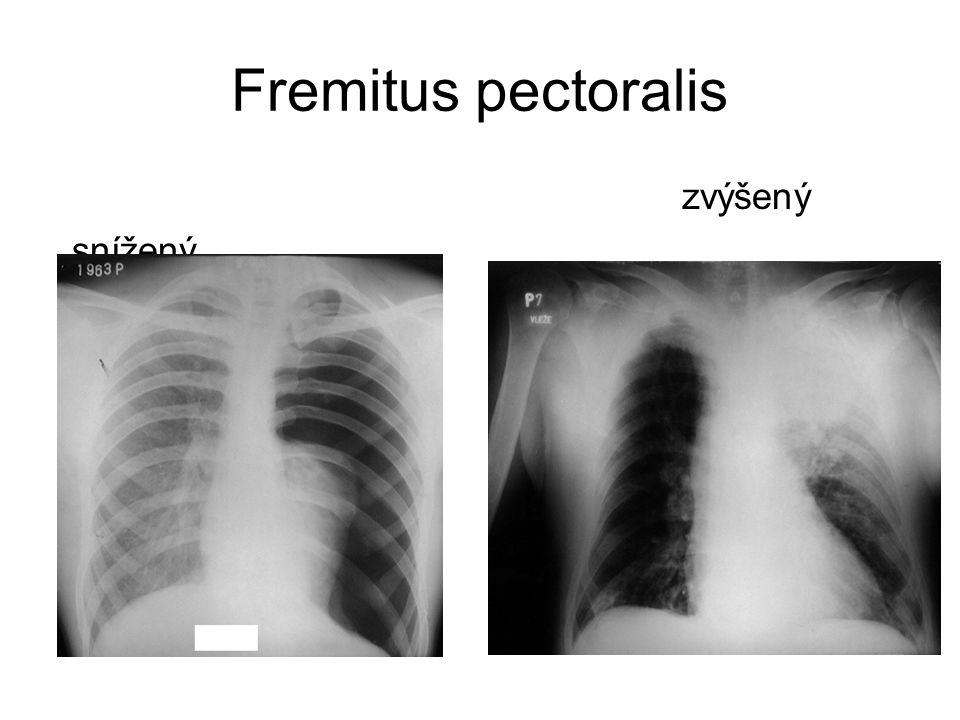 Fremitus pectoralis zvýšený snížený