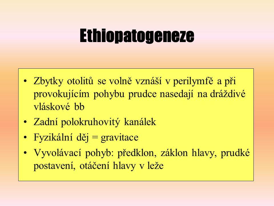 Ethiopatogeneze Zbytky otolitů se volně vznáší v perilymfě a při provokujícím pohybu prudce nasedají na dráždivé vláskové bb.