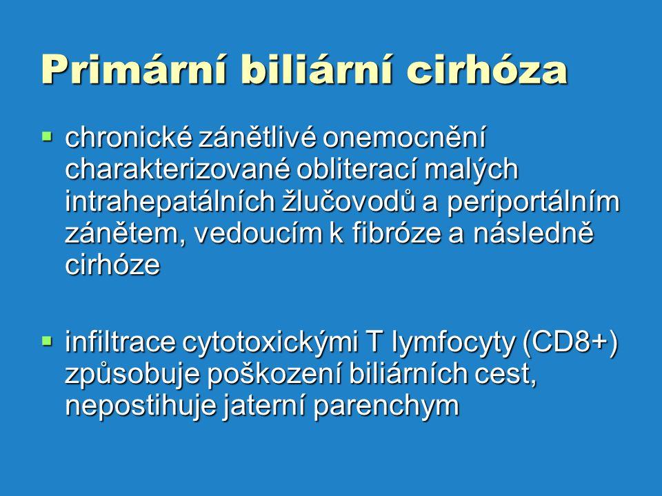 Primární biliární cirhóza