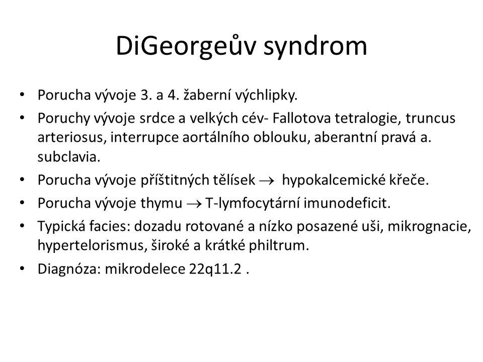 DiGeorgeův syndrom Porucha vývoje 3. a 4. žaberní výchlipky.