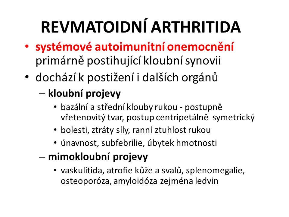 REVMATOIDNÍ ARTHRITIDA