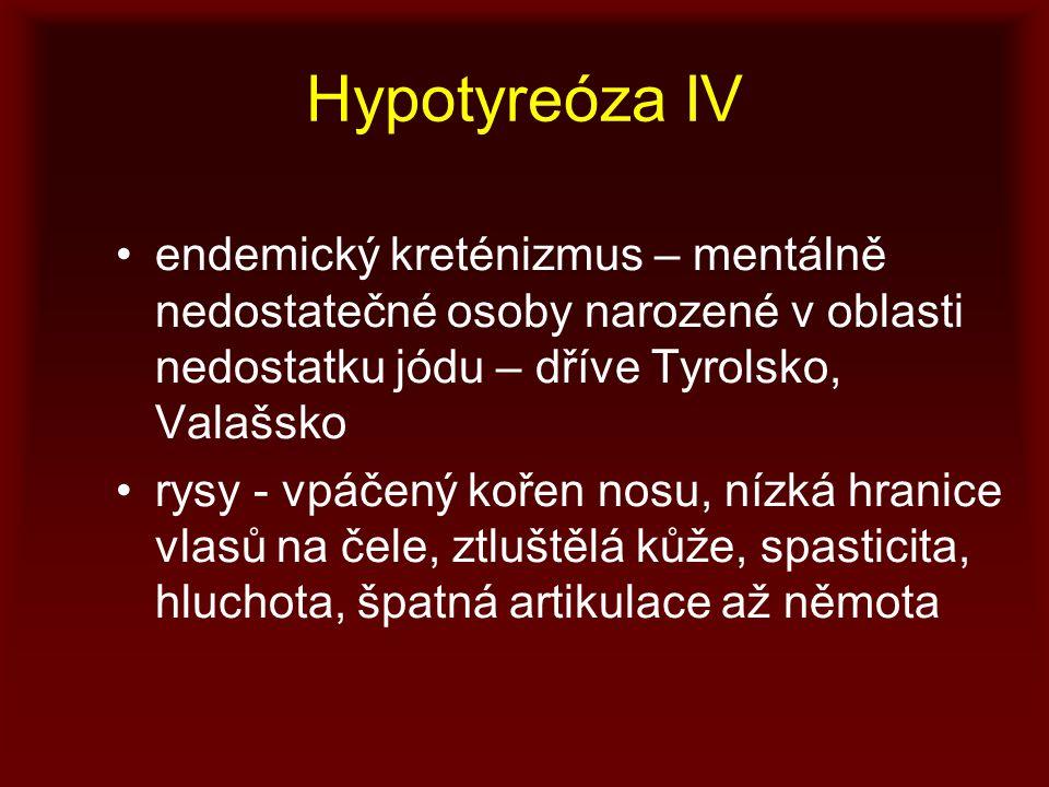 Hypotyreóza IV endemický kreténizmus – mentálně nedostatečné osoby narozené v oblasti nedostatku jódu – dříve Tyrolsko, Valašsko.