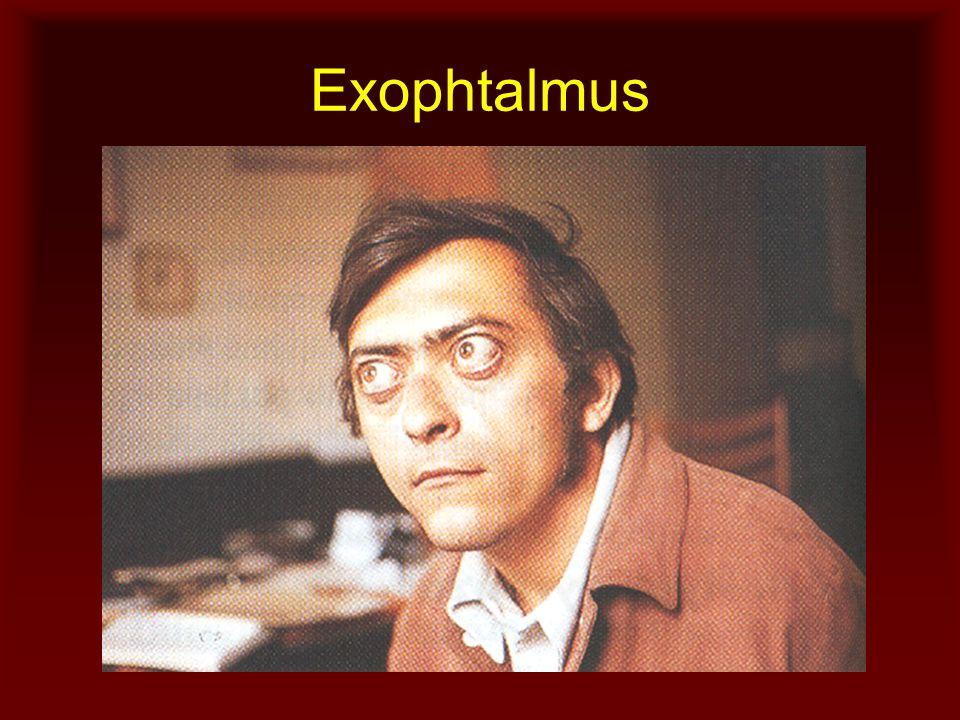 Exophtalmus