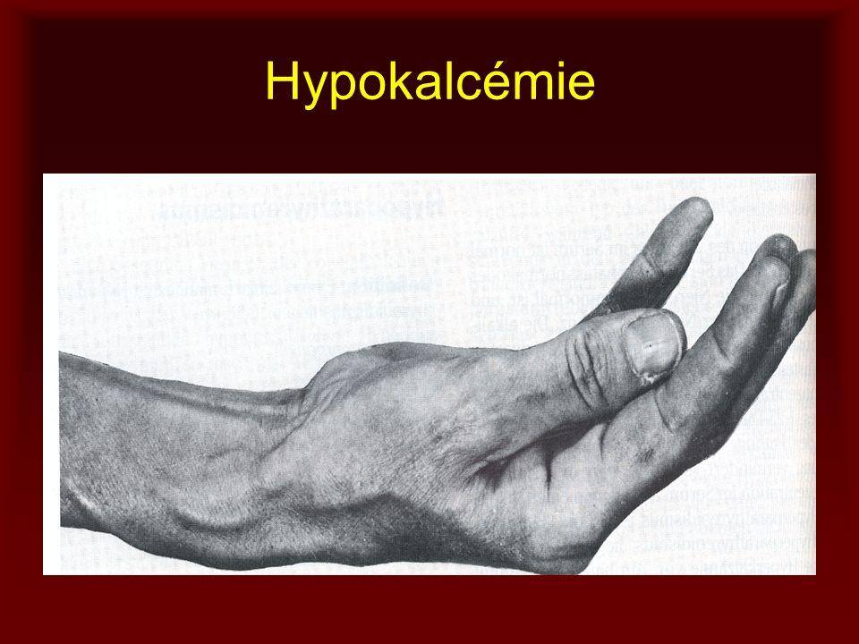 Hypokalcémie