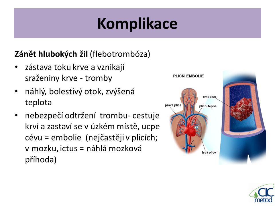 Komplikace Zánět hlubokých žil (flebotrombóza)