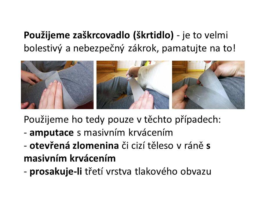 Použijeme zaškrcovadlo (škrtidlo) - je to velmi bolestivý a nebezpečný zákrok, pamatujte na to!