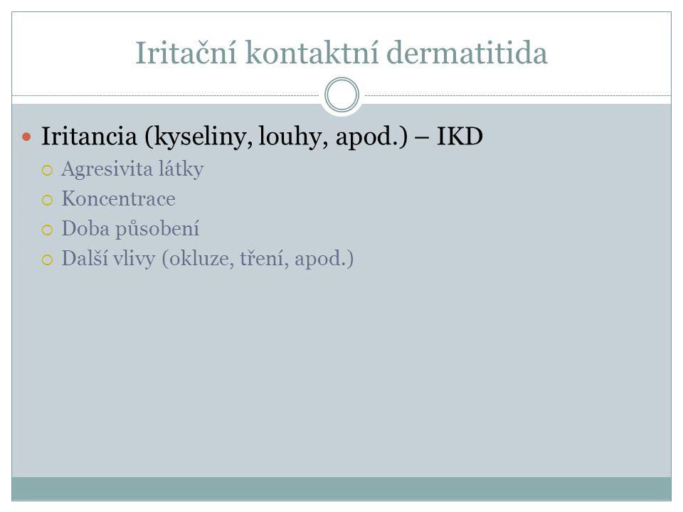 Iritační kontaktní dermatitida