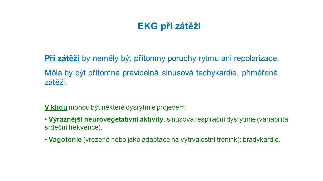 EKG při zátěži Při zátěži by neměly být přítomny poruchy rytmu ani repolarizace.
