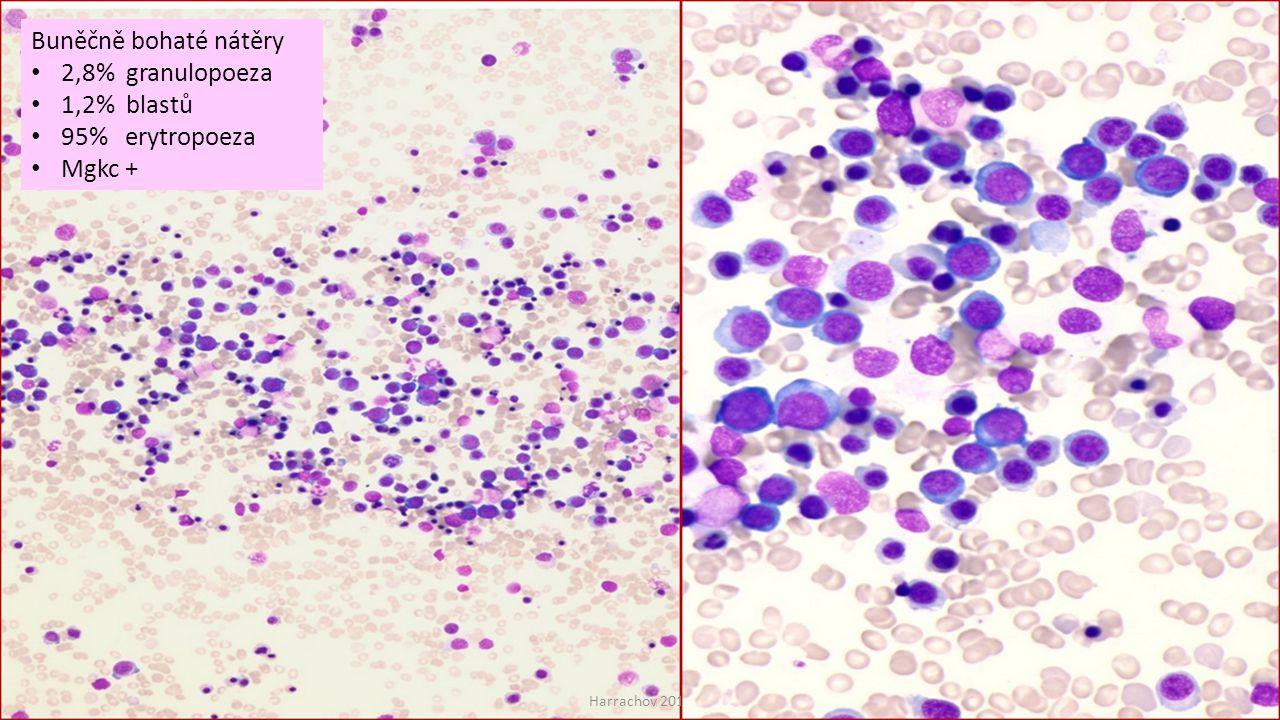 Buněčně bohaté nátěry 2,8% granulopoeza 1,2% blastů 95% erytropoeza