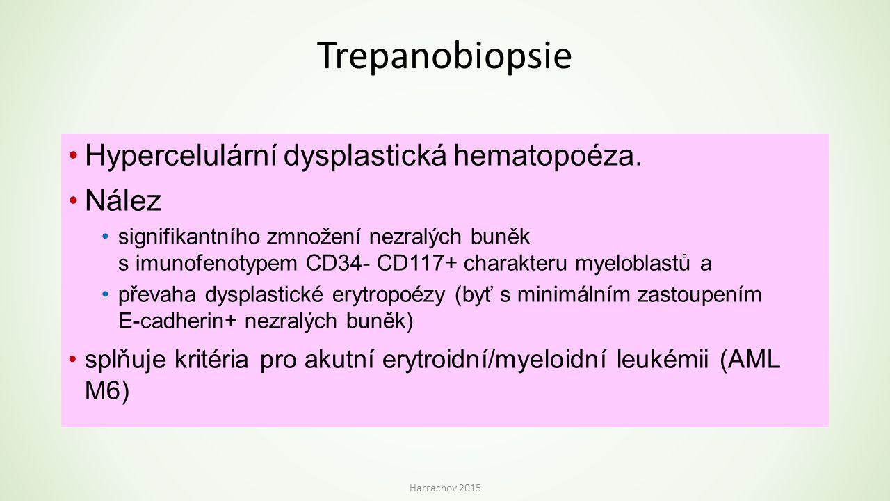 Trepanobiopsie Hypercelulární dysplastická hematopoéza. Nález