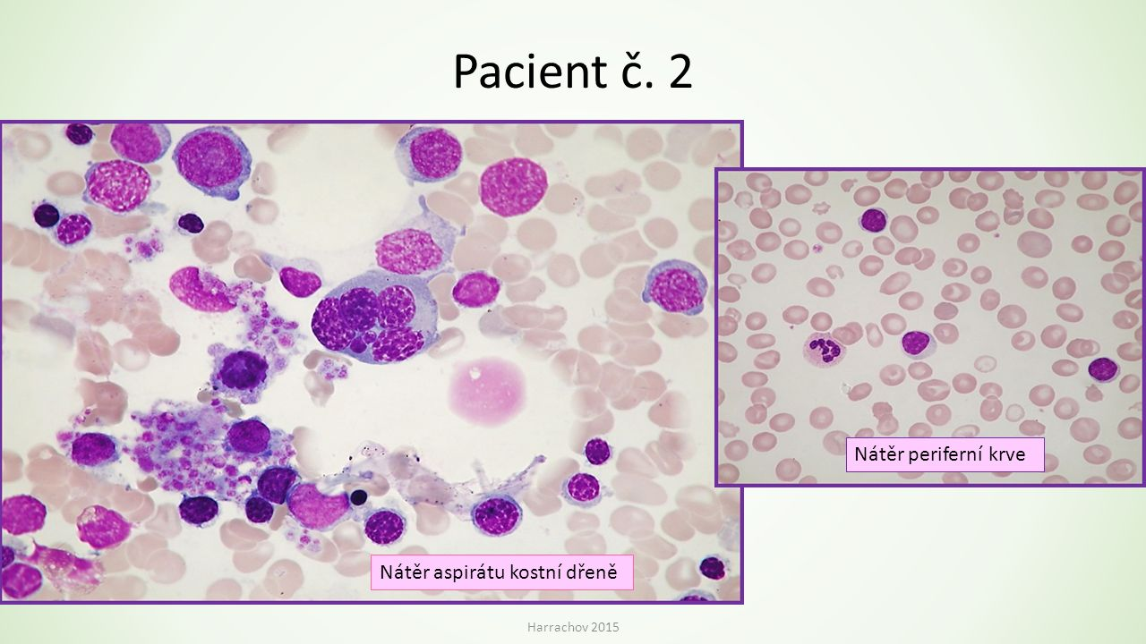 Pacient č. 2 Nátěr periferní krve Nátěr aspirátu kostní dřeně