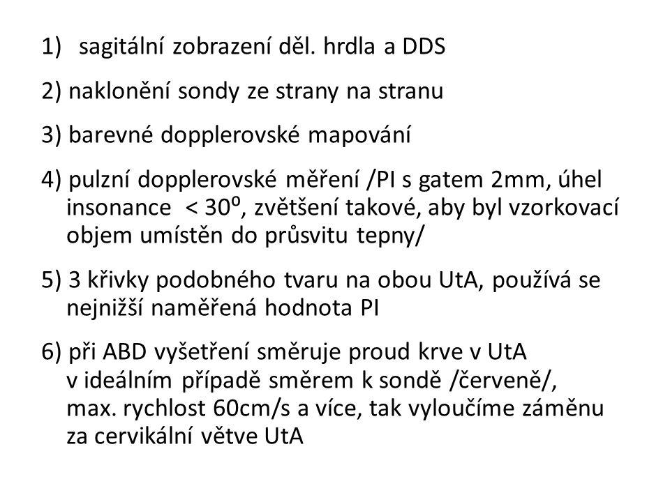 sagitální zobrazení děl. hrdla a DDS