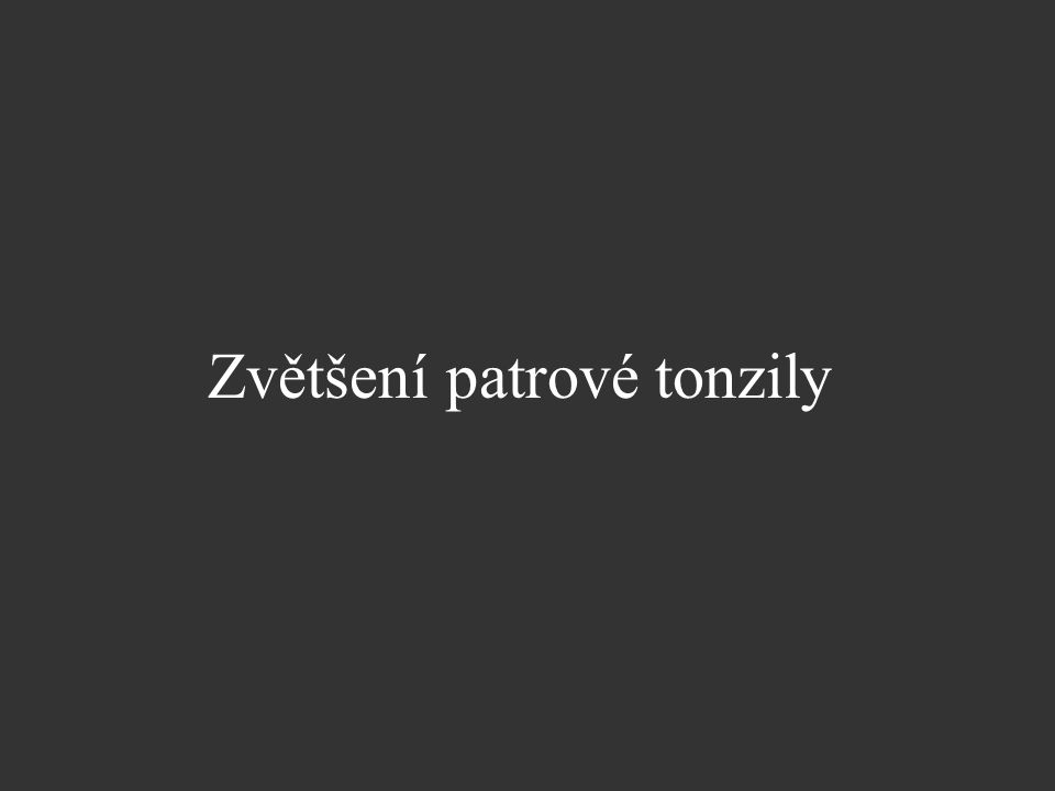 Zvětšení patrové tonzily
