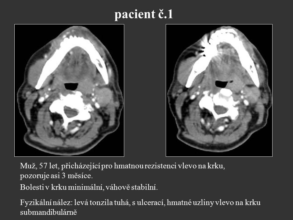 pacient č.1 Muž, 57 let, přicházející pro hmatnou rezistenci vlevo na krku, pozoruje asi 3 měsíce. Bolesti v krku minimální, váhově stabilní.