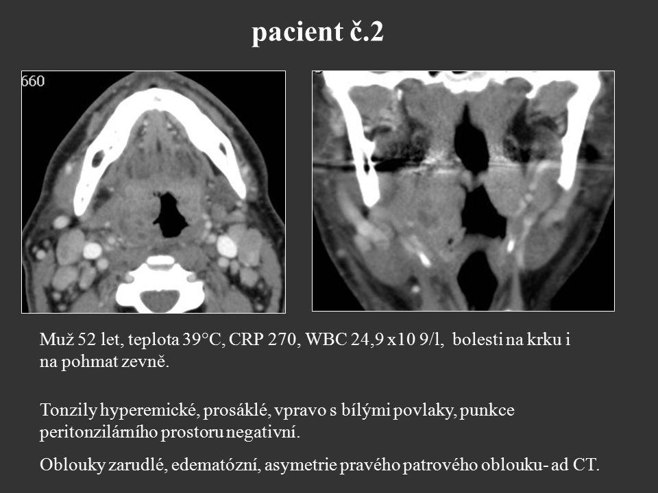 pacient č.2 Muž 52 let, teplota 39°C, CRP 270, WBC 24,9 x10 9/l, bolesti na krku i. na pohmat zevně.
