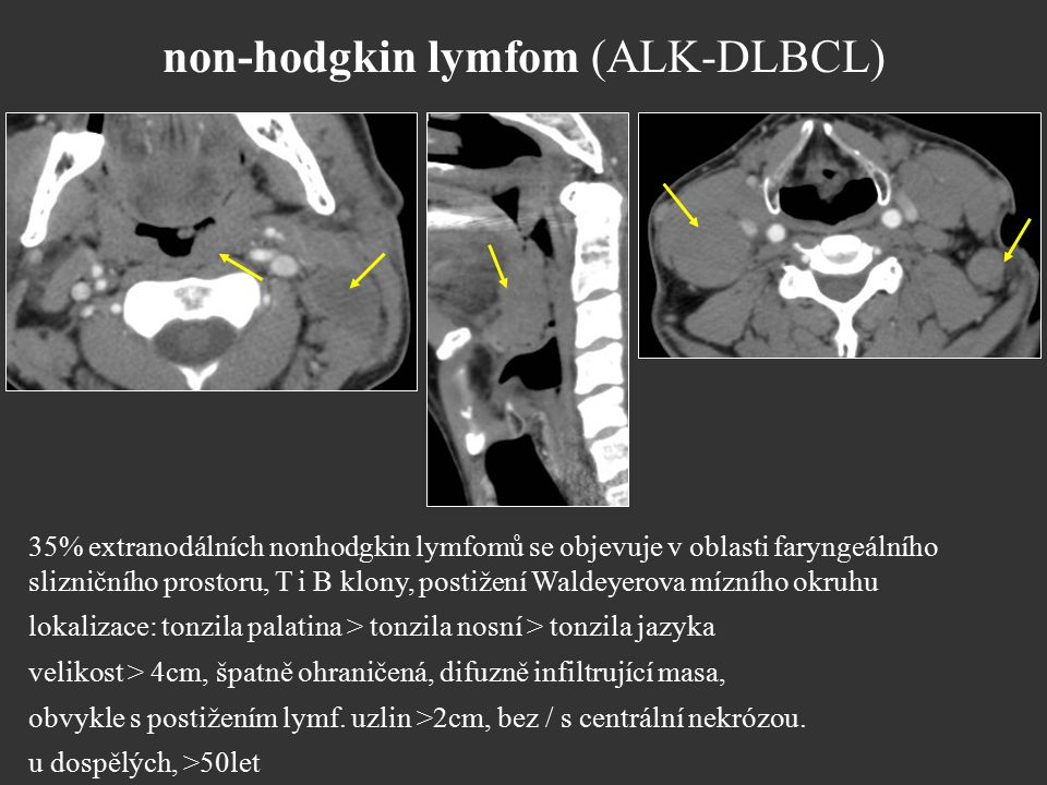 non-hodgkin lymfom (ALK-DLBCL)