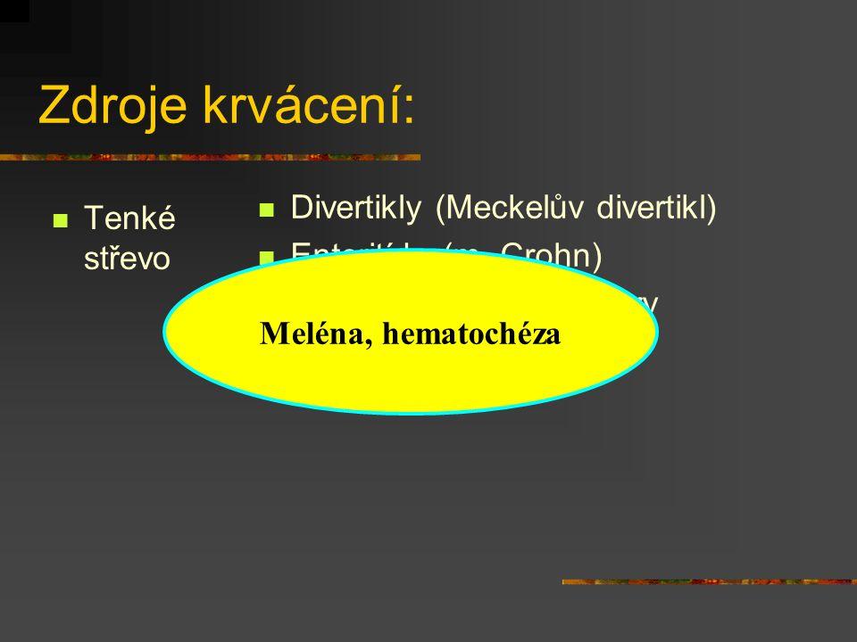 Zdroje krvácení: Divertikly (Meckelův divertikl) Tenké střevo