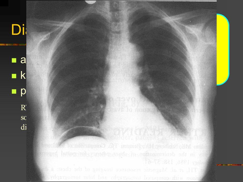 Diagnostika NPB anamnesa klinické vyšetření - 5P