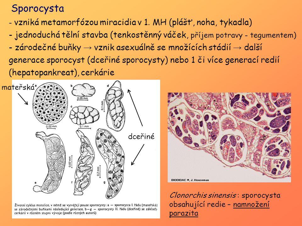 Sporocysta vzniká metamorfózou miracidia v 1. MH (plášť, noha, tykadla) jednoduchá tělní stavba (tenkostěnný váček, příjem potravy - tegumentem)