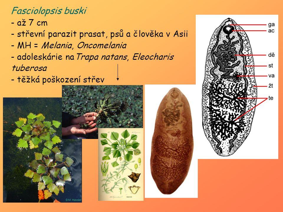 Fasciolopsis buski až 7 cm