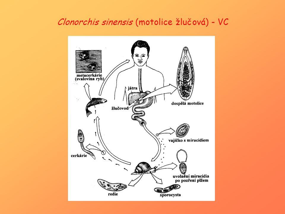Clonorchis sinensis (motolice žlučová) - VC