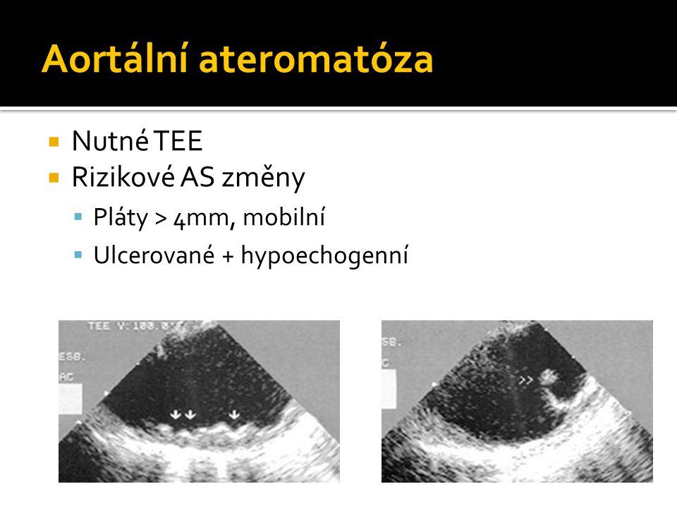 Aortální ateromatóza Nutné TEE Rizikové AS změny
