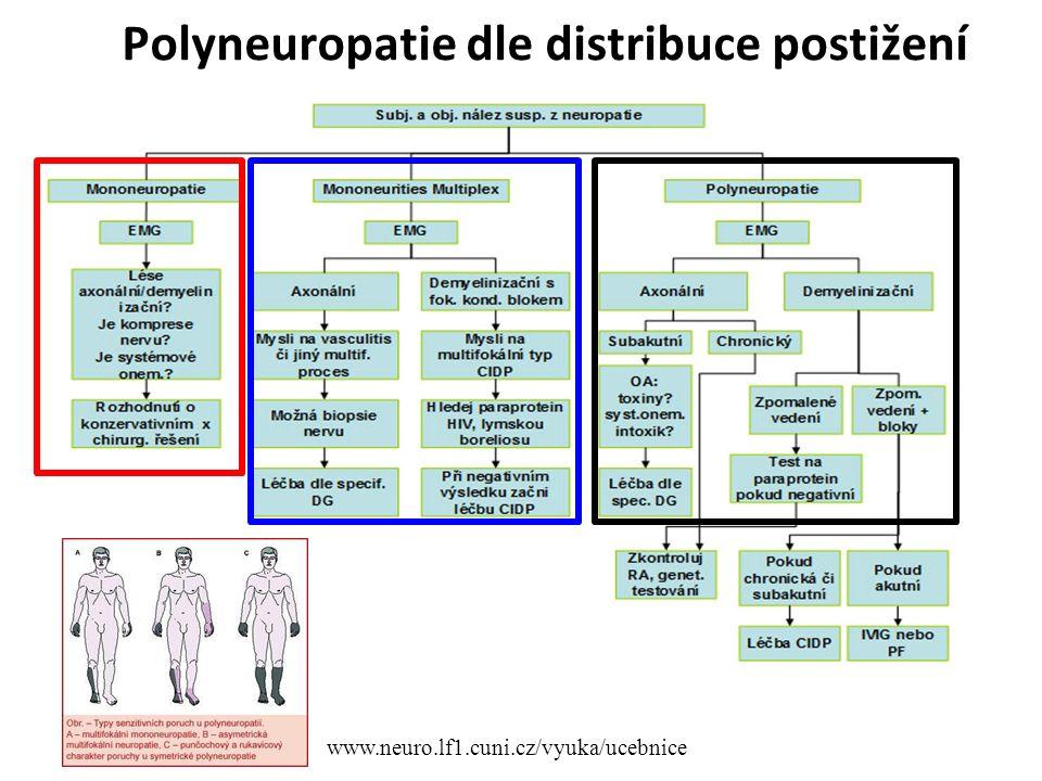 Polyneuropatie dle distribuce postižení