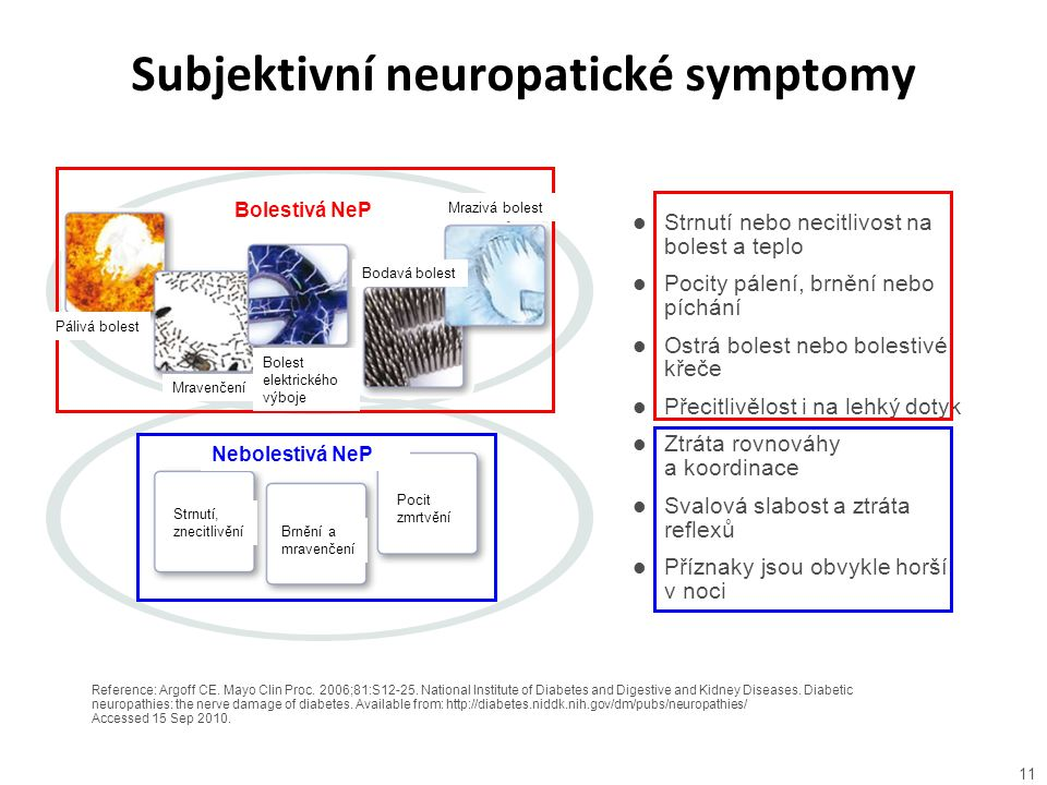 Subjektivní neuropatické symptomy