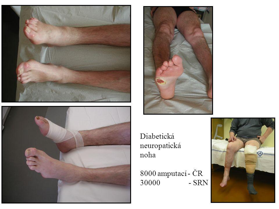 Diabetická neuropatická noha 8000 amputací - ČR 30000 - SRN