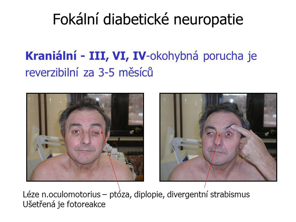 Fokální diabetické neuropatie