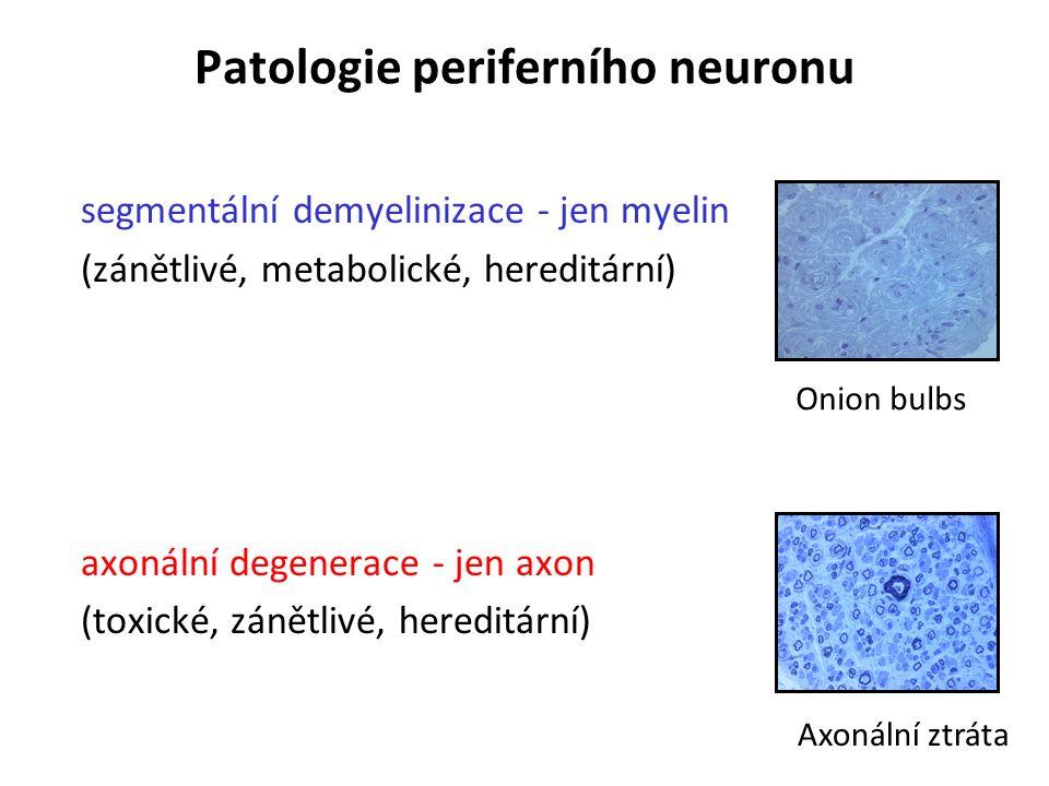Patologie periferního neuronu