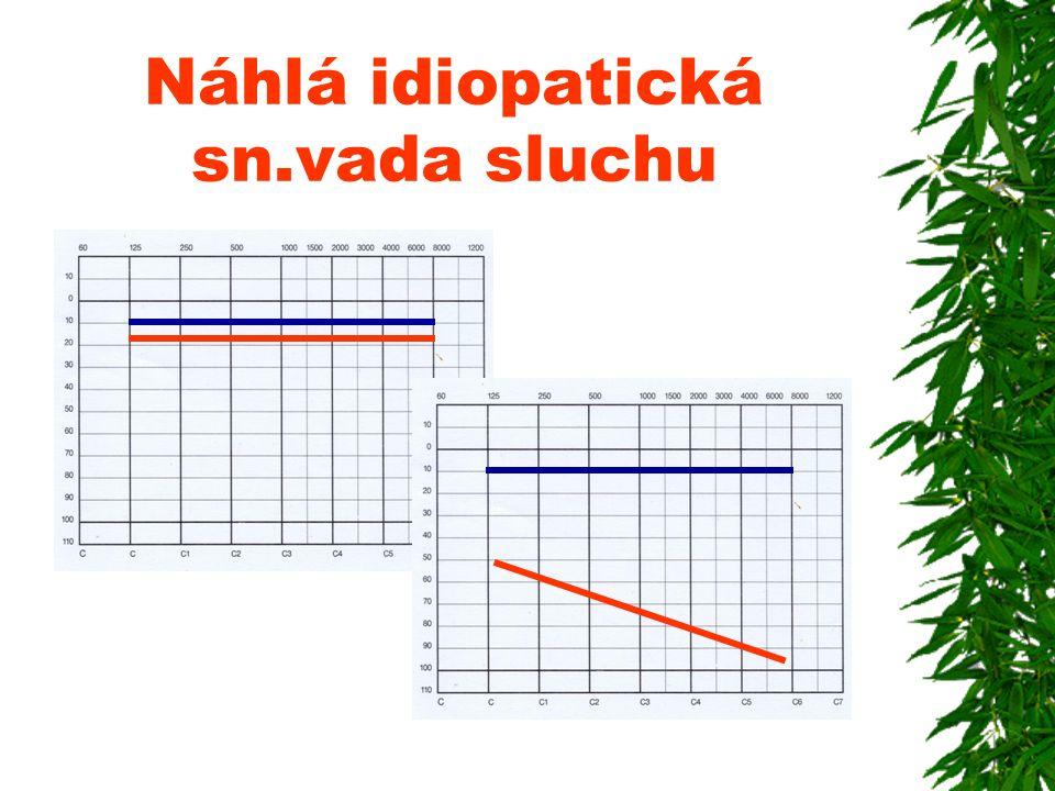Náhlá idiopatická sn.vada sluchu
