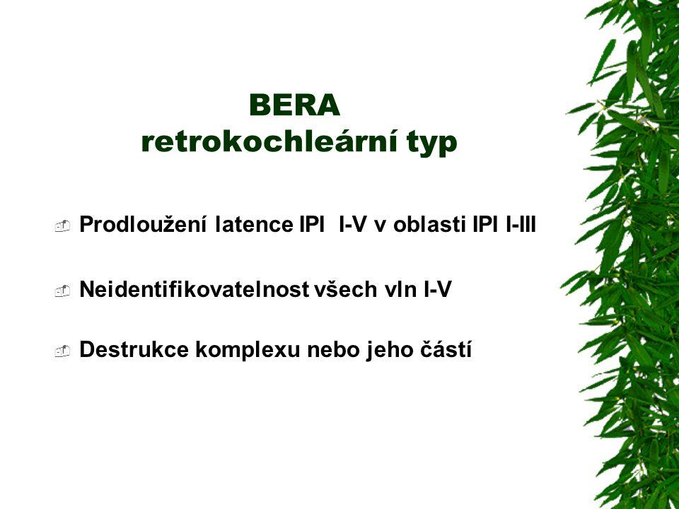 BERA retrokochleární typ