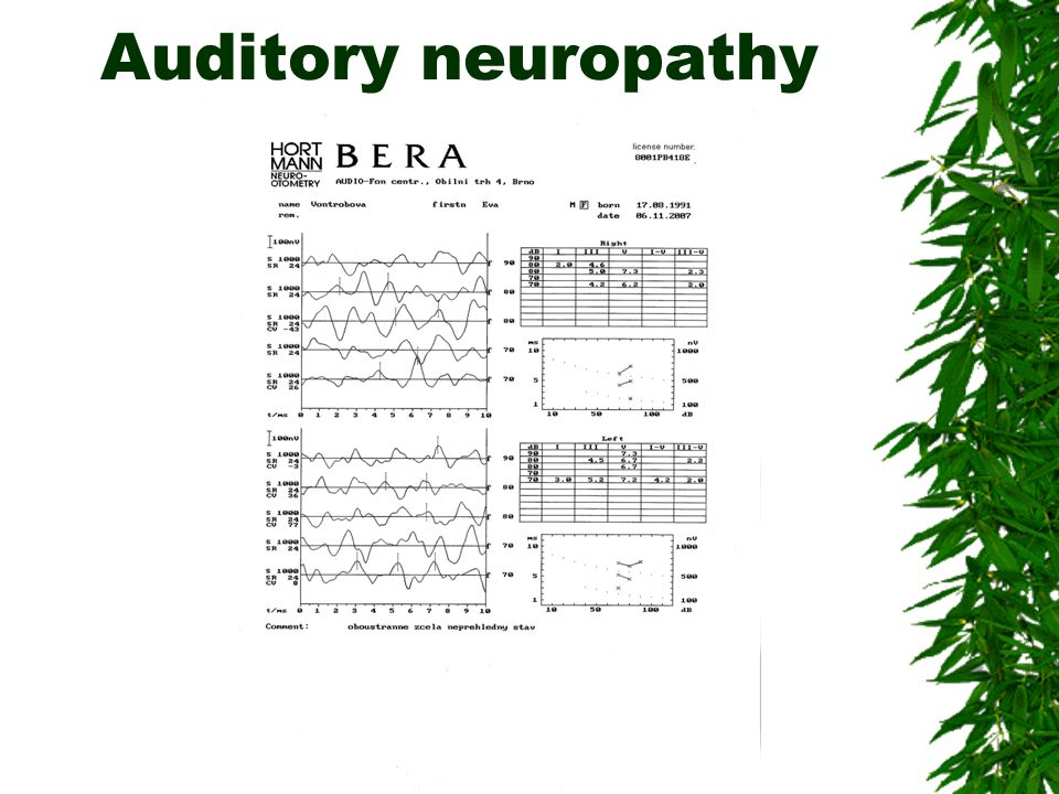 Auditory neuropathy