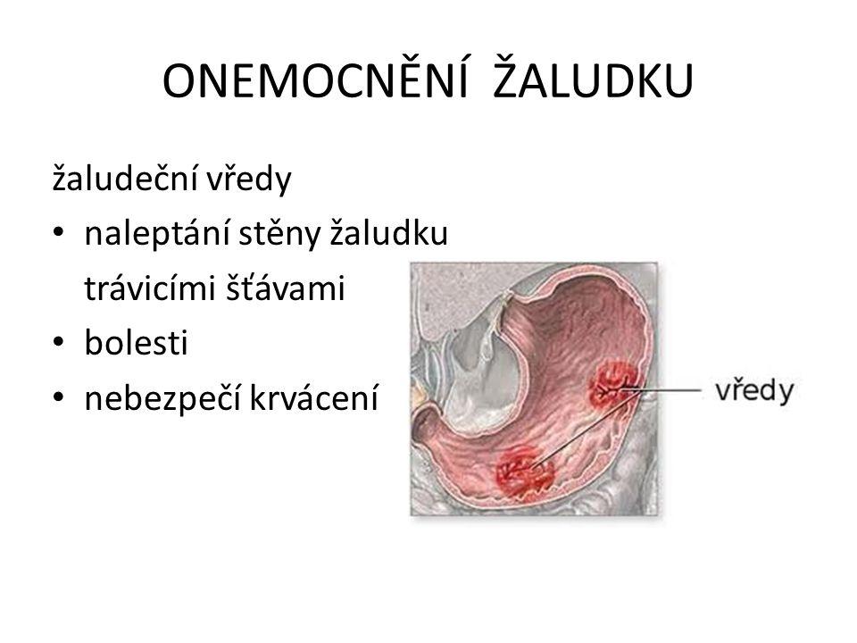 ONEMOCNĚNÍ ŽALUDKU žaludeční vředy naleptání stěny žaludku