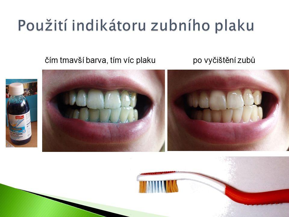 Použití indikátoru zubního plaku