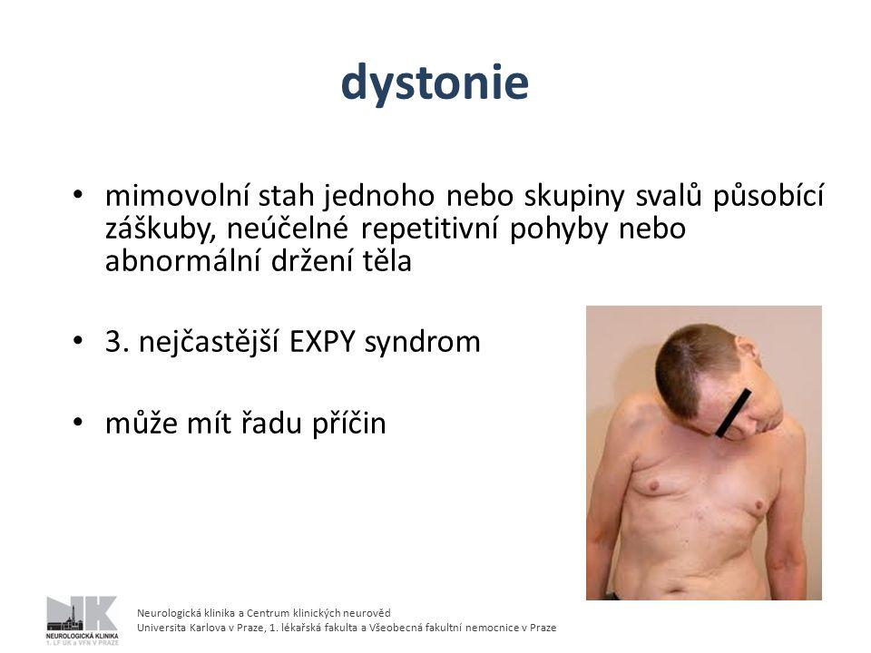 dystonie mimovolní stah jednoho nebo skupiny svalů působící záškuby, neúčelné repetitivní pohyby nebo abnormální držení těla.