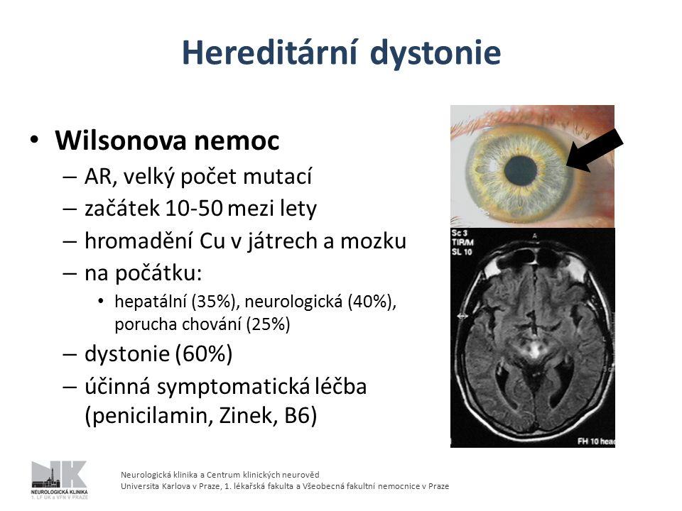 Hereditární dystonie Wilsonova nemoc AR, velký počet mutací