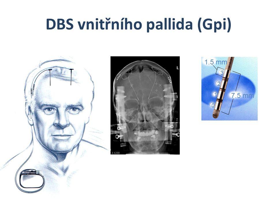 DBS vnitřního pallida (Gpi)