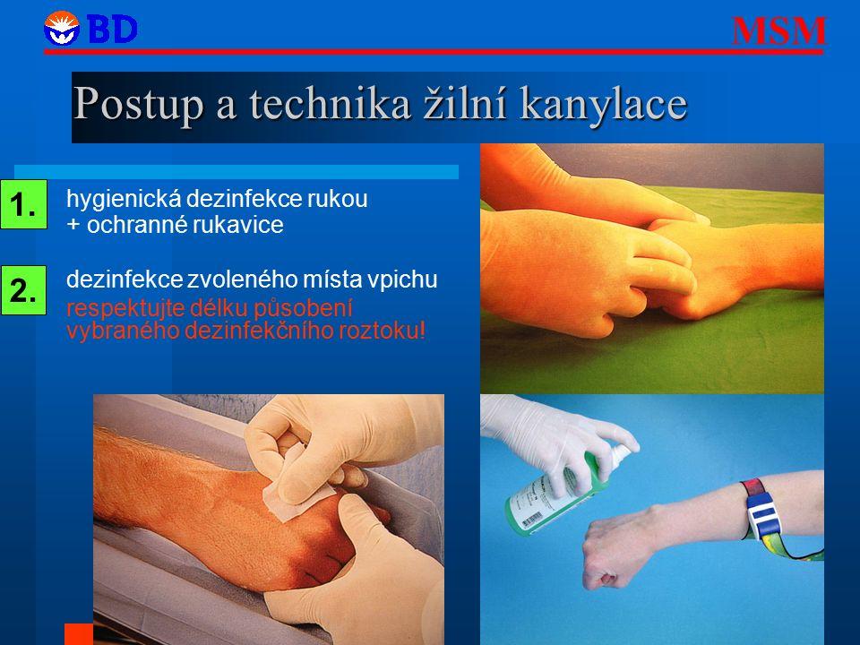 Postup a technika žilní kanylace