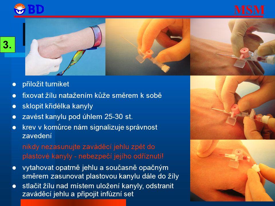 3. přiložit turniket fixovat žílu natažením kůže směrem k sobě