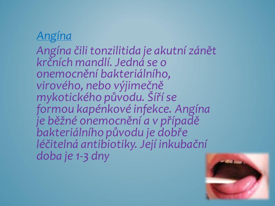 Angína