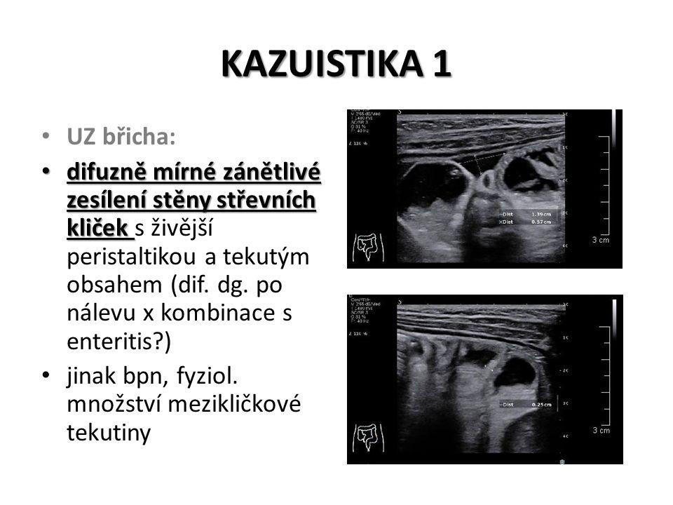 KAZUISTIKA 1 UZ břicha: