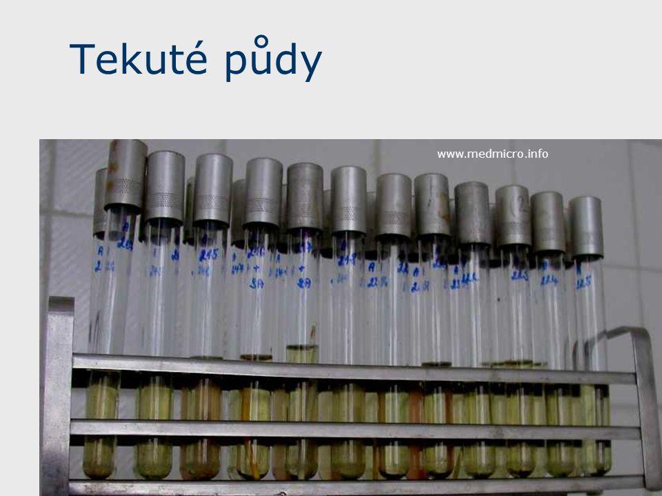 Tekuté půdy www.medmicro.info