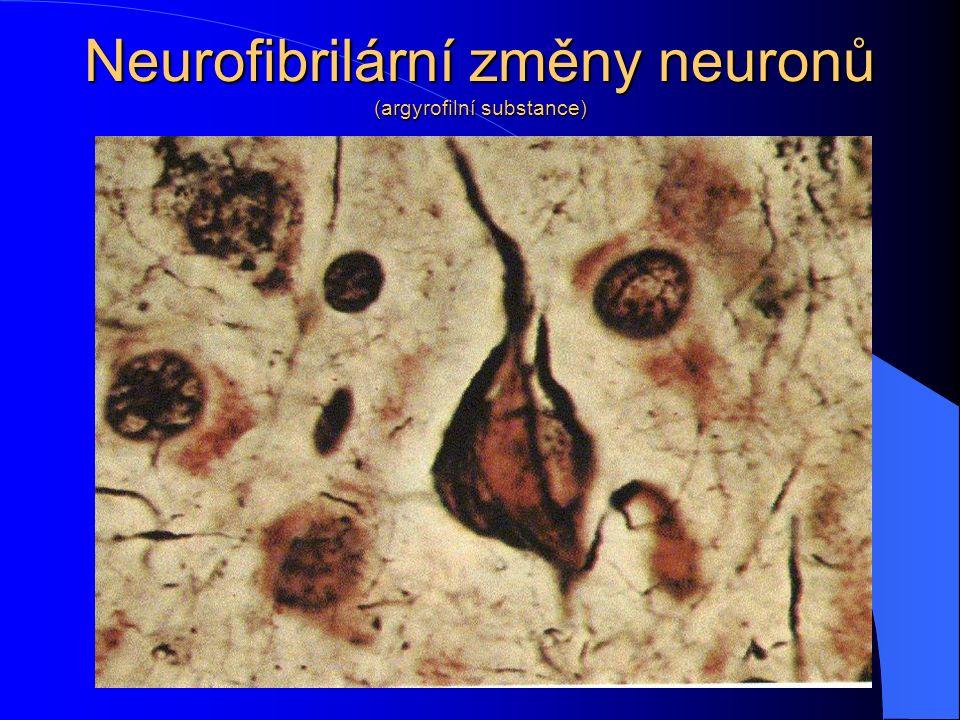 Neurofibrilární změny neuronů (argyrofilní substance)