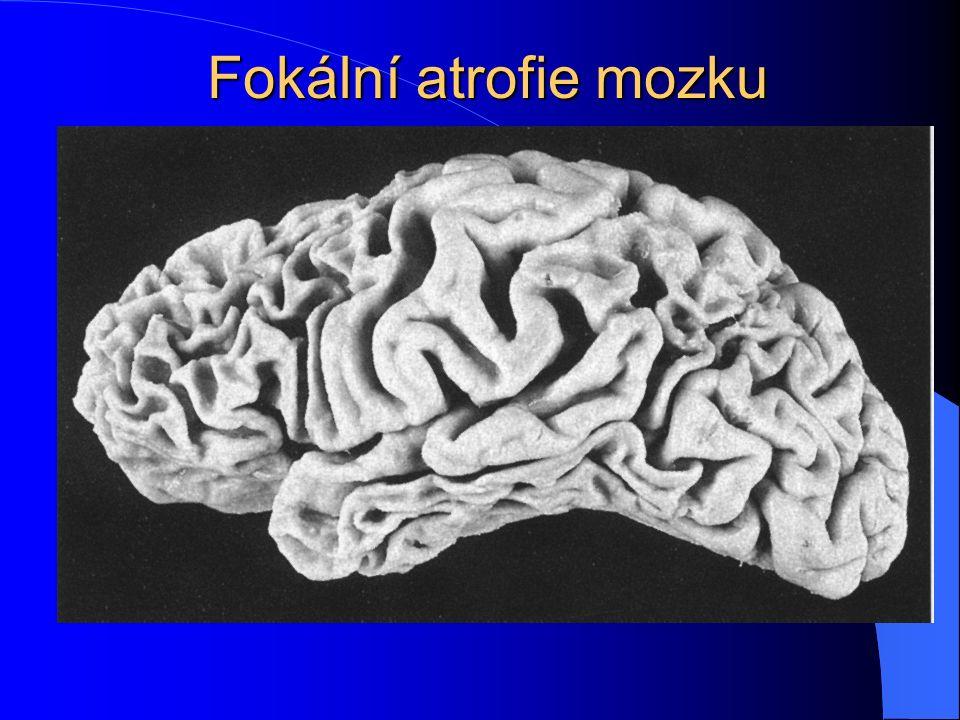 Fokální atrofie mozku